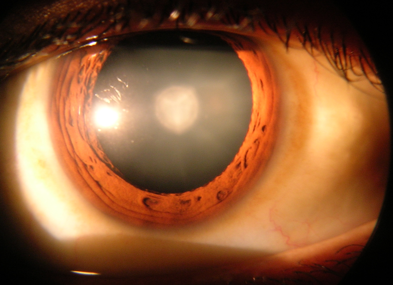 wpid-800px-cataract_in_human_eye-2011-02-21-12-35.png