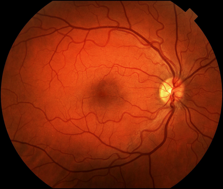 wpid-normal1-2011-02-21-12-35.jpg